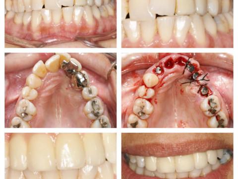 Implantes postextracción con regeneración ósea y tisular guiada