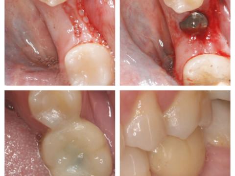 Implante osteointegrado con técnica PUNCH