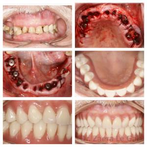 Elevada sobremordida con desgaste de los dientes de la arcada inferior
