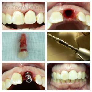 Carga inmediata de implantes