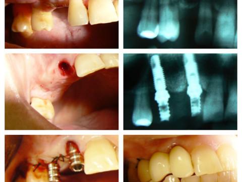 Colocación inmediata postextracción de dos implantes