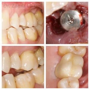 Implante con corona de porcelana