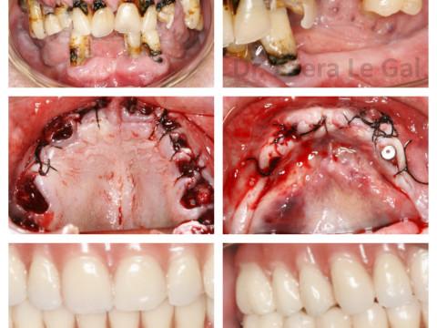 Rehabilitación fija con implantes