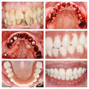 Patología periodontal y grandes ausencias dentarias