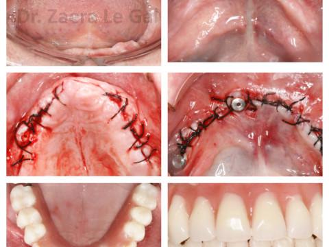 Atrofia ósea a nivel mandibular