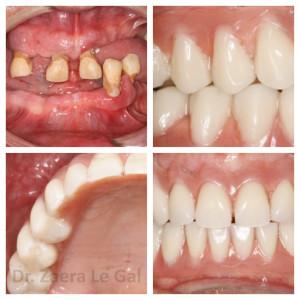 Mujer de 55 años con gran ausencia de piezas dentarias