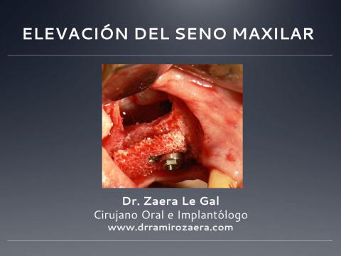 Elevación del seno maxilar