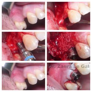 Expansión ósea. Atrofia del maxilar superior