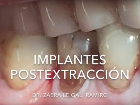 Implantes dentales postextracción en paciente con fractura radicular