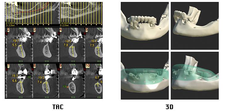 regeneración ósea mediante barreras oclusivas