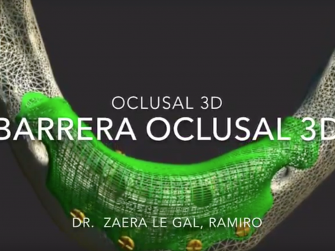 Barreras oclusivas de regeneración de hueso l Implantes Dentales