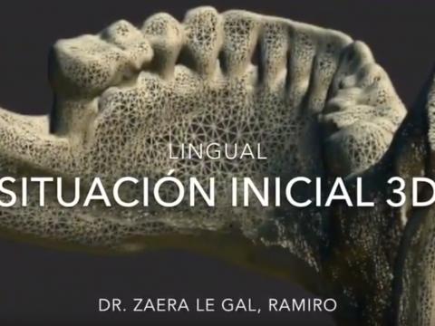 Regeneración ósea del propio paciente sin injertos - Implantes dentales